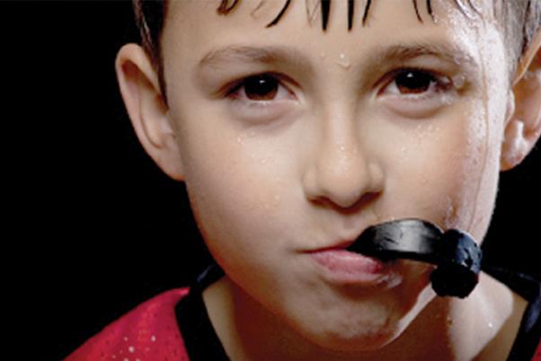 mouthguard1